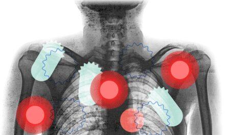 Si koronavirusi sulmon zemrën, trurin dhe mëlçinë – përveç mushkërive