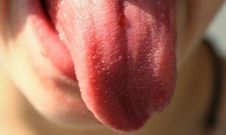 """Gjuha Covid"", simptoma e re e koronavirusit"