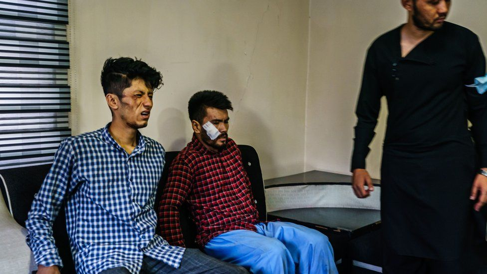 """""""Jeni me fat që nuk iu prenë kokat"""", gazetarët në Afganistan tregojnë për rrahjet nga talebanët"""